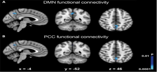 Disturbo di Personalità Borderline- Corteccia prefrontale ventromediale