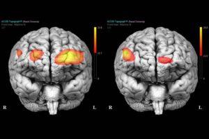 cervello borderline